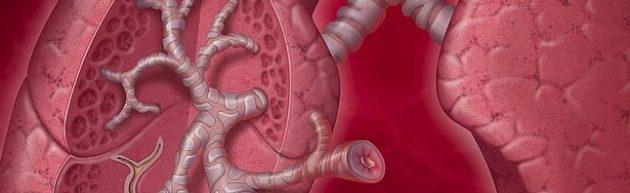 اعراض و علاج مرض الرئة الانسدادي المزمن